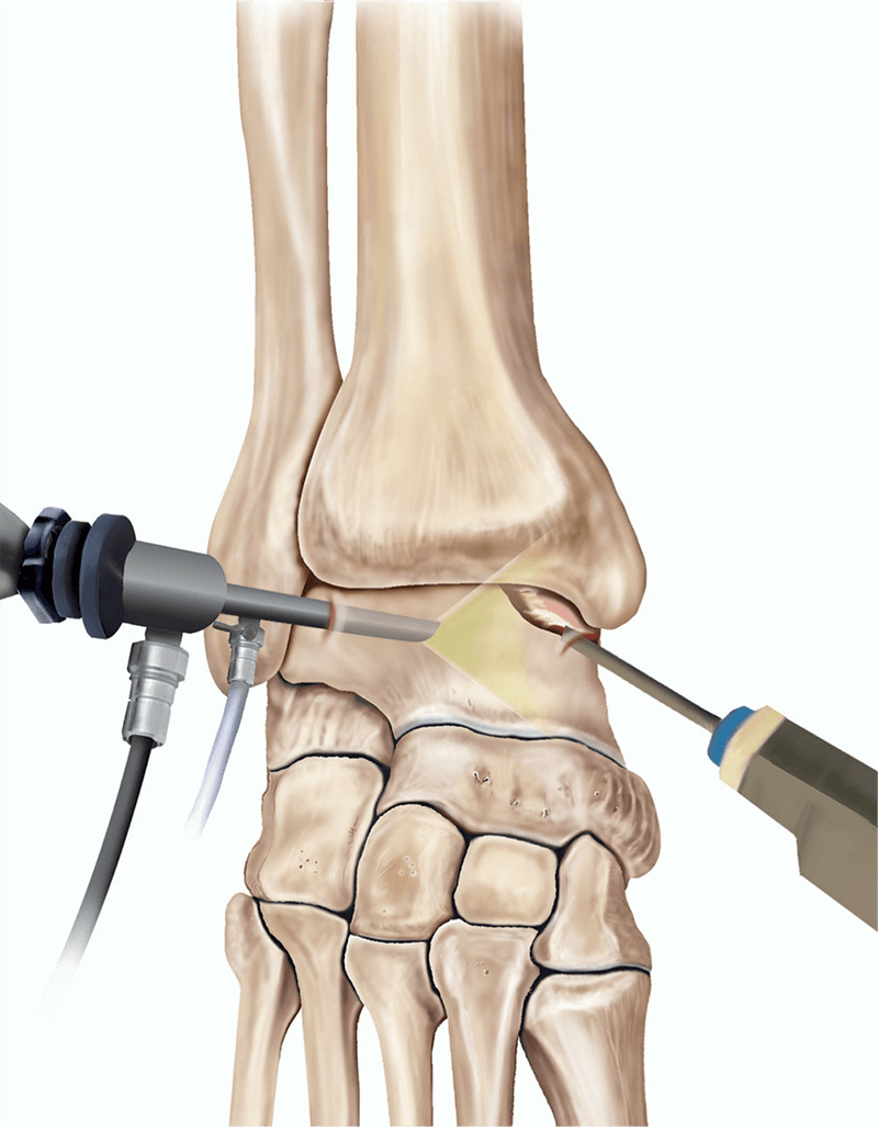 best foot and ankle surgeons in melbourne