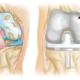 knee arthroscopy recovery time